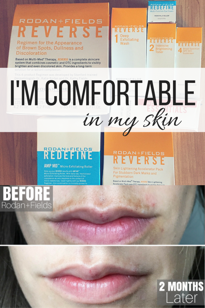 Finding Confidence in my skin again with Rodan + Fields | rodan and fields | rodan and fields regimens | rodan and fields consultant | rodan and fields results | rodan and fields before and after | rodan and fields posts | chloasma treatment | chloasma remedy | sun spots remedies | skin care routine | skin care tips | skin care before and after | best skin care